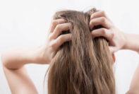 ¡Se revelan problemas de cabello en hombres y mujeres!