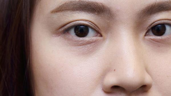 hinchazón debajo del ojo