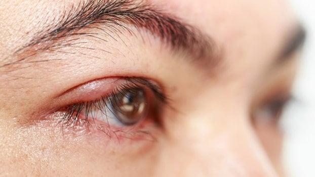 Cómo deshacerse de la erupción cutánea con picazón en la cara, los pies y alrededor de los ojos