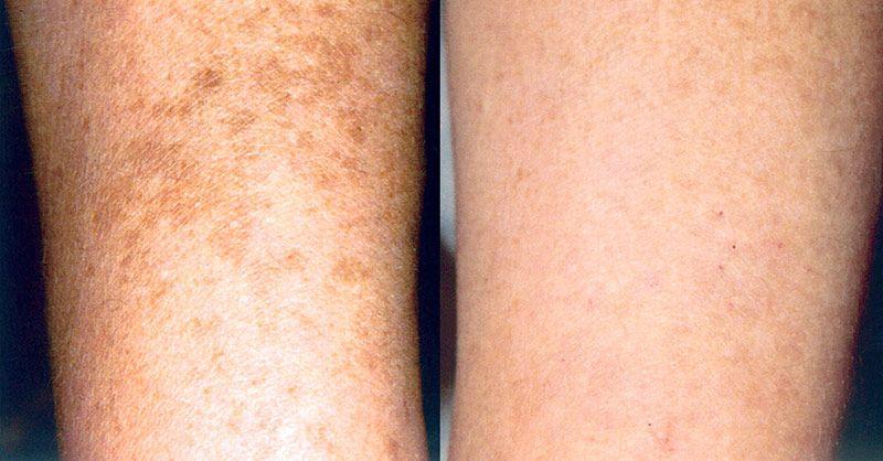 Cómo deshacerse de la piel manchada en los brazos, piernas, quemaduras solares en la espalda, descamación