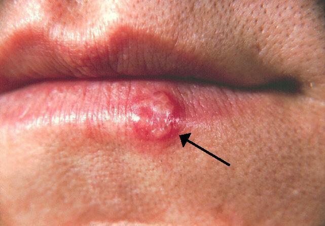 Cómo deshacerse de las ampollas de fiebre en la cara, lengua, labios y boca