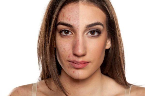 Cómo deshacerse de las manchas de acné en la cara