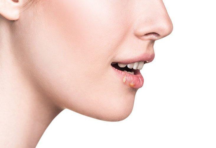 Cómo prevenir el herpes labial en la nariz y los labios