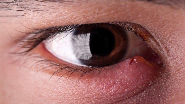Cómo tratar la infección ocular naturalmente en casa