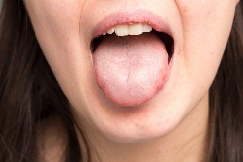 Cómo tratar la infección por cándida en la piel y la boca