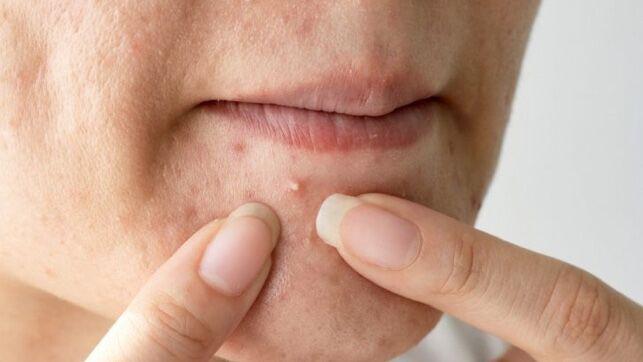 cómo deshacerse de la hiperpigmentación