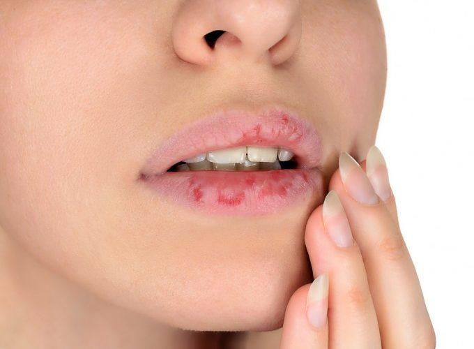 como tratar los labios agrietados