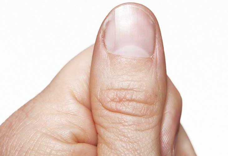 consejos para detener la punción de la piel en el cuero cabelludo, los dedos y alrededor de las uñas