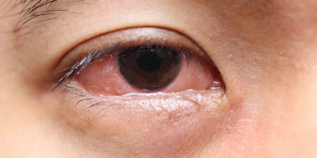 deshacerse de los ojos secos en la mañana