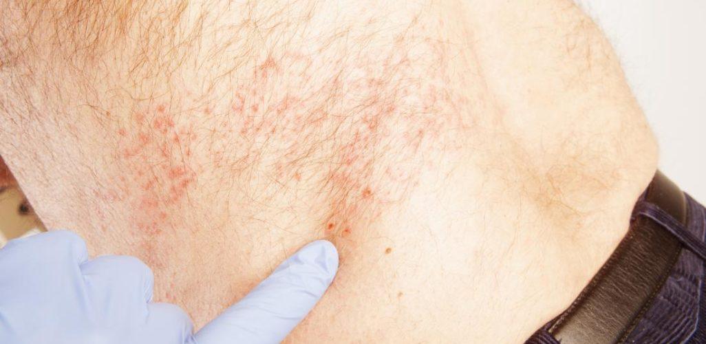 get rid of shingles pain at home