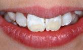 maneras de eliminar las manchas blancas de los dientes