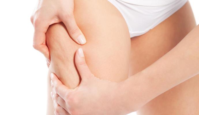 remedios caseros para el tratamiento de la celulitis