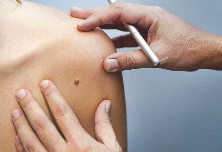remedios caseros para eliminar lunares en la piel y la cara