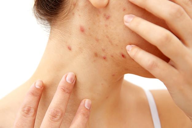 remedios caseros para las verrugas en la cara, cuello, manos y pies