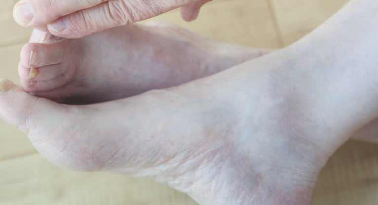 tratar la infección de gangrena en los dedos de los pies de forma natural